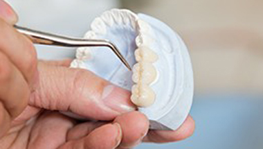 Model of teeth with implant supported crowns