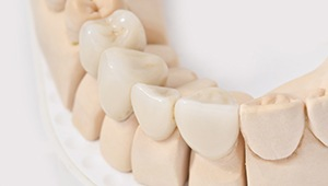 Model of dental implant tooth replacement