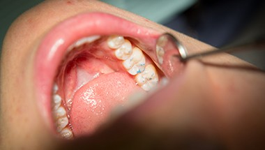Patient's smile examined after filling placement