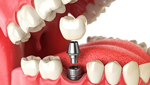 Model of implant supported denture