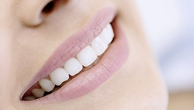 Closeup of flawless smile with porcelain veneers