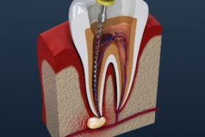 A cross section of a tooth getting a root canal