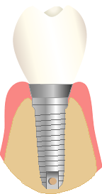 Implant3_edited